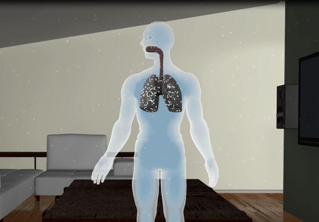Radon Particles